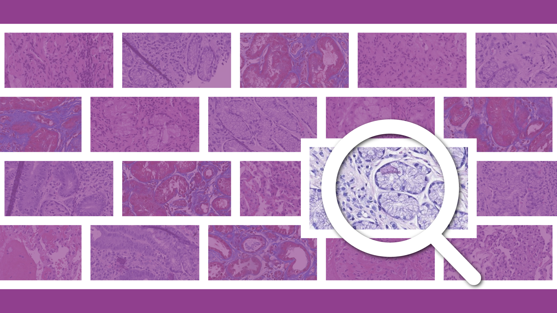 Empowering the Future of Remote Pathology with Image Search